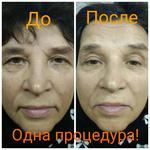 Процедура лифтинга и анти-возрастной массаж кожи лица