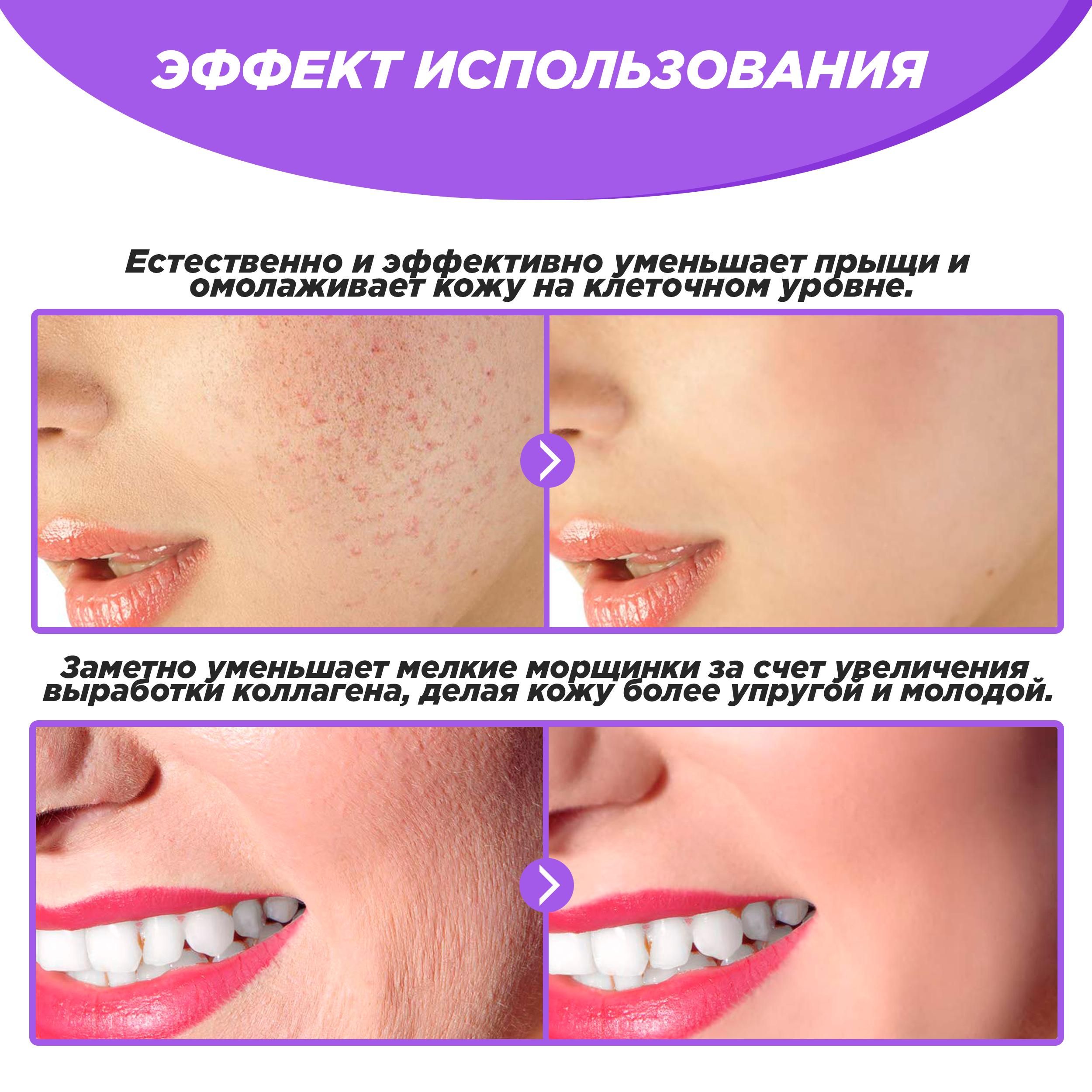 Фото Инфографика для товара