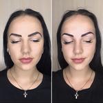 Пудровый и  волосковый метод
