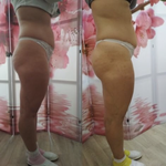Антицеллюлитный массаж от 120 грн