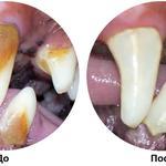Снятие зубного камня и чистка зубов